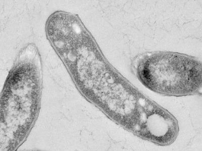 Koch y los bacilos: experimentos que contagian